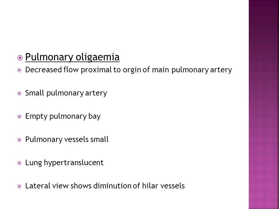  Pulmonary oligaemia  Decreased flow proximal to orgin of main pulmonary artery  Small pulmonary artery  Empty pulmonary bay  Pulmonary vessels s