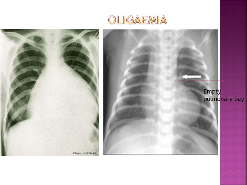Empty pulmonary bay