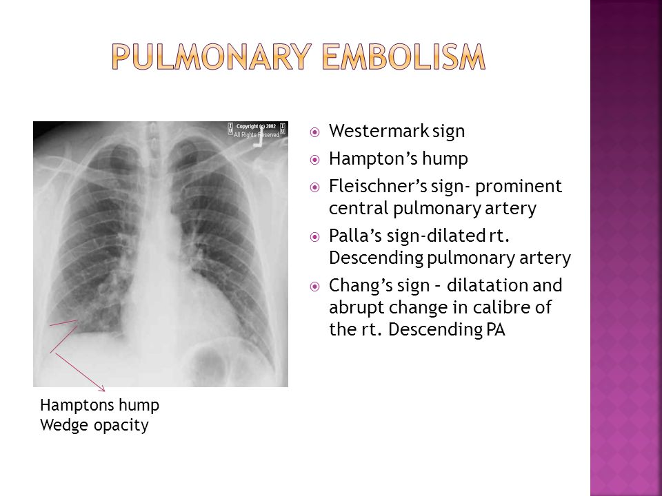  Westermark sign  Hampton's hump  Fleischner's sign- prominent central pulmonary artery  Palla's sign-dilated rt. Descending pulmonary artery  Ch