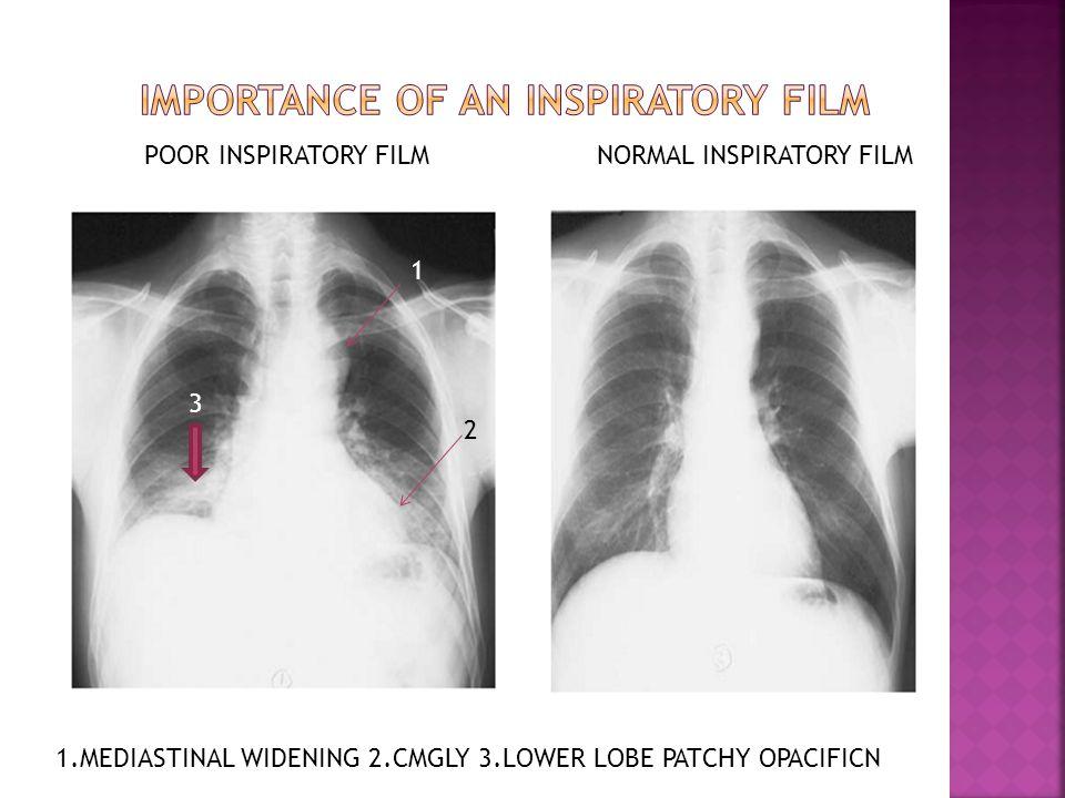  Mitral regurgitation  LA enlargement  LV enlargement  Pulmonary venous hypertension