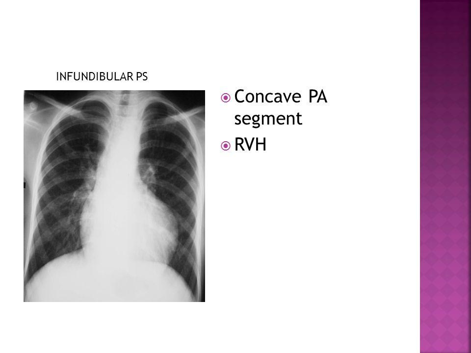  Concave PA segment  RVH INFUNDIBULAR PS