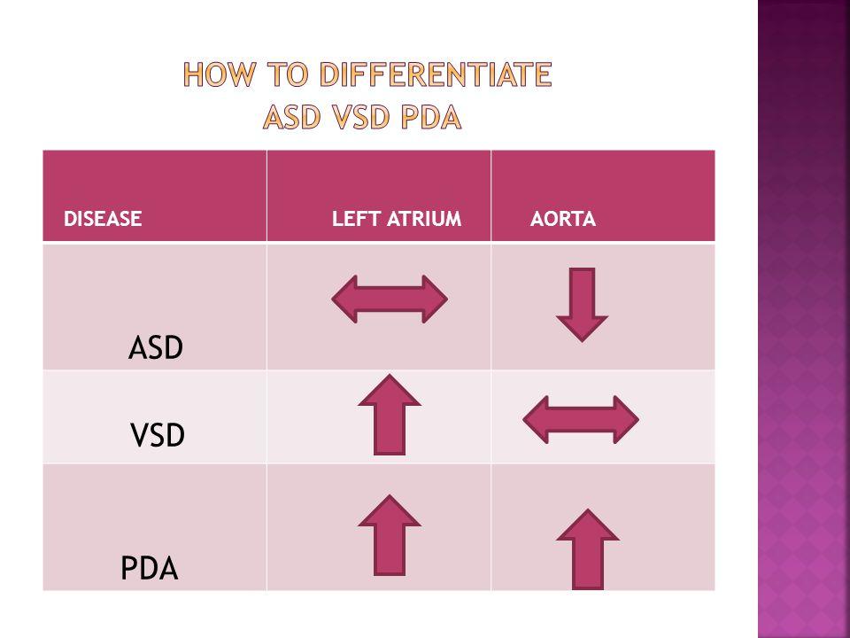 DISEASE LEFT ATRIUM AORTA ASD VSD PDA