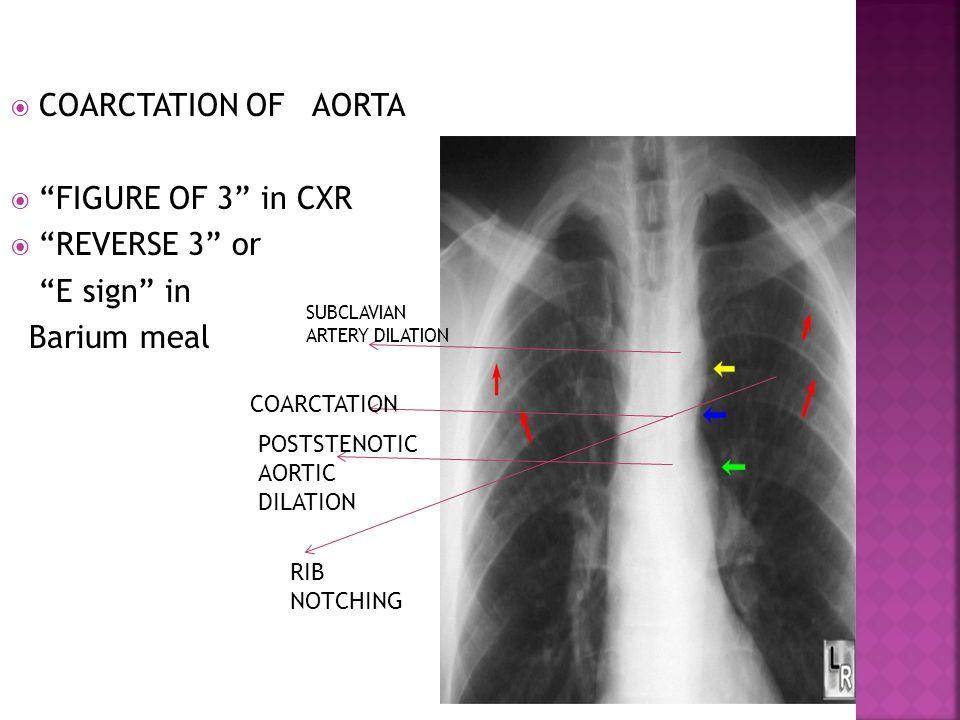 " COARCTATION OF AORTA  ""FIGURE OF 3"" in CXR  ""REVERSE 3"" or ""E sign"" in Barium meal SUBCLAVIAN ARTERY DILATION COARCTATION POSTSTENOTIC AORTIC DILA"