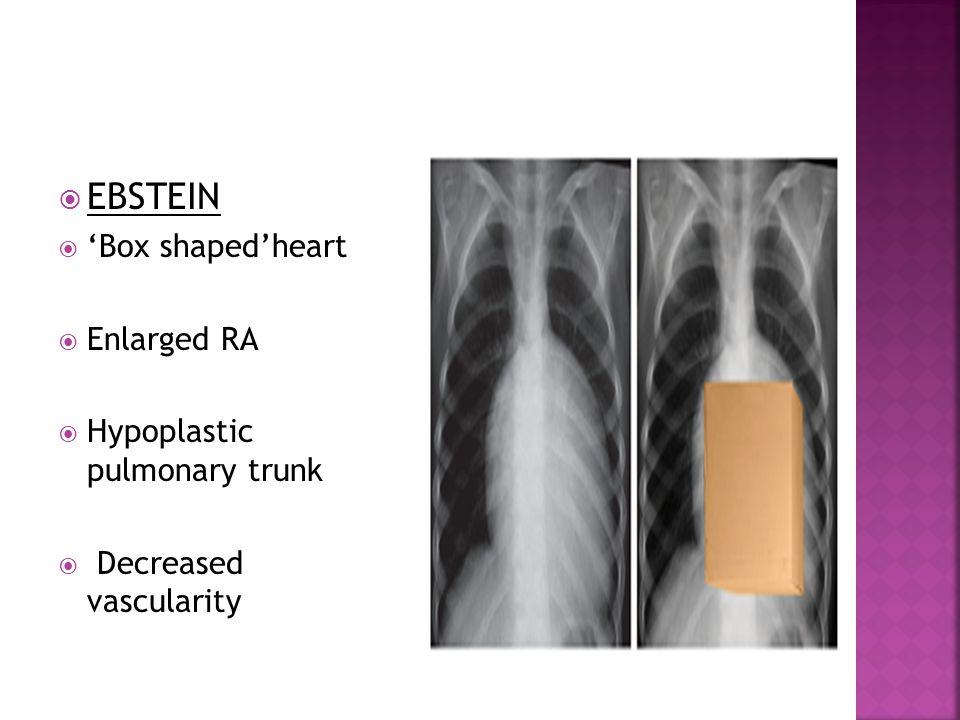  EBSTEIN  'Box shaped'heart  Enlarged RA  Hypoplastic pulmonary trunk  Decreased vascularity