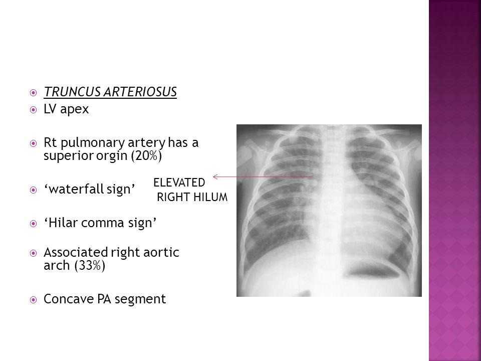  TRUNCUS ARTERIOSUS  LV apex  Rt pulmonary artery has a superior orgin (20%)  'waterfall sign'  'Hilar comma sign'  Associated right aortic arch