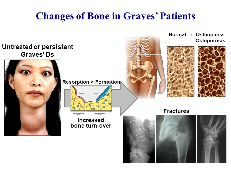 Untreated or persistent Graves' Ds Increased bone turn-over Fractures Normal → Osteopenia Osteporosis Changes of Bone in Graves' Patients Resorption > Formation