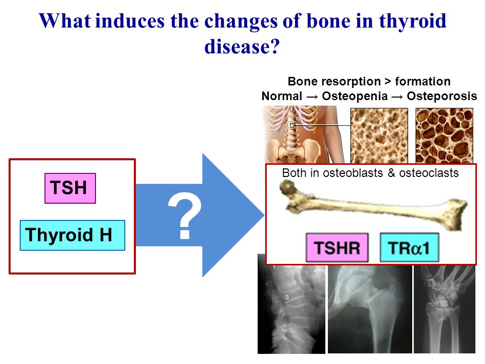 Bone resorption > formation Normal → Osteopenia → Osteporosis What induces the changes of bone in thyroid disease.