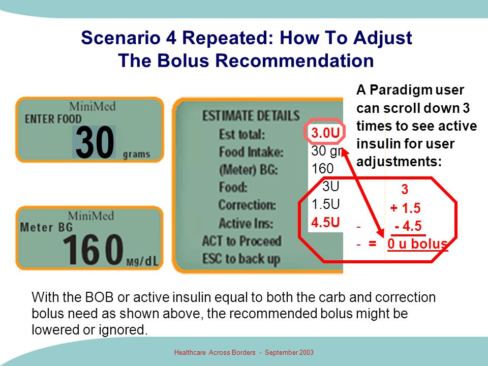 Healthcare Across Borders - September 2003 Scenario 4 Repeated: How To Adjust The Bolus Recommendation 3.0U 30 gr 160 3U 1.5U 4.5U A Paradigm user can