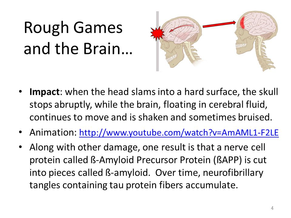 4 Rough Games and the Brain… Impact: when the head slams into a hard surface, the skull stops abruptly, while the brain, floating in cerebral fluid, continues to move and is shaken and sometimes bruised.