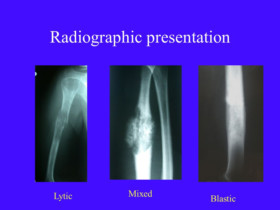 Radiographic presentation Lytic Mixed Blastic
