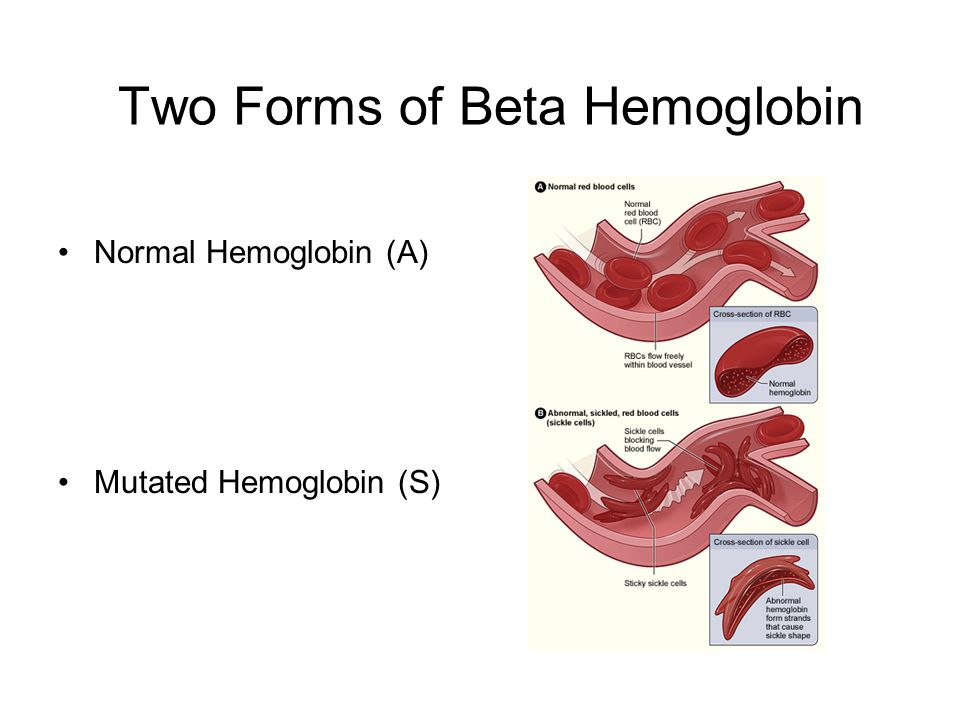 Two Forms of Beta Hemoglobin Normal Hemoglobin (A) Mutated Hemoglobin (S)