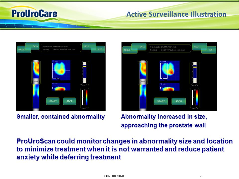 Active Surveillance Illustration Smaller, contained abnormality Abnormality increased in size, approaching the prostate wall approaching the prostate wall ProUroScan could monitor changes in abnormality size and location to minimize treatment when it is not warranted and reduce patient anxiety while deferring treatment CONFIDENTIAL7