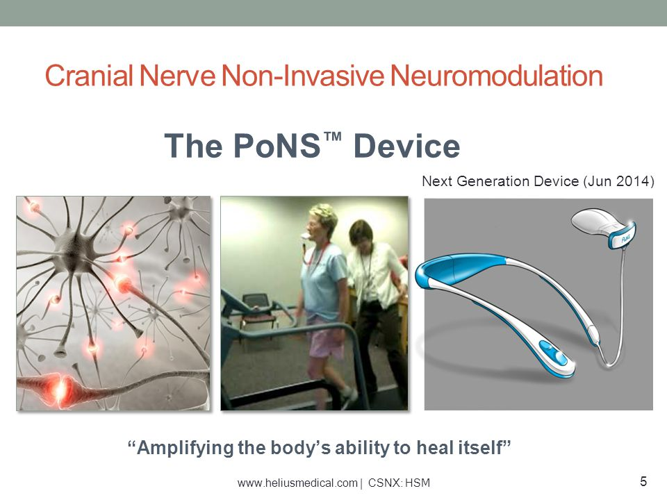 """The PoNS ™ Device """"Amplifying the body's ability to heal itself"""" Next Generation Device (Jun 2014) Cranial Nerve Non-Invasive Neuromodulation 5 www.he"""