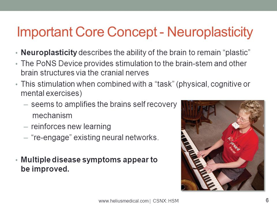 """Important Core Concept - Neuroplasticity Neuroplasticity describes the ability of the brain to remain """"plastic"""" The PoNS Device provides stimulation t"""