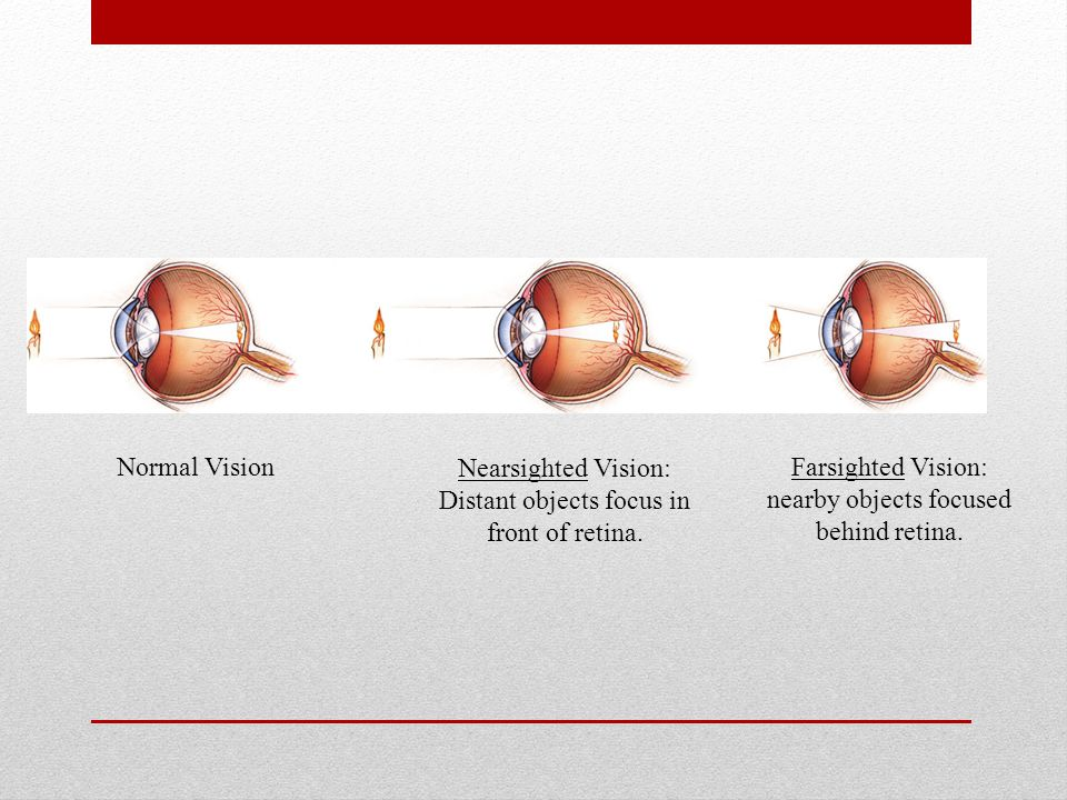 Normal Vision Nearsighted Vision: Distant objects focus in front of retina. Farsighted Vision: nearby objects focused behind retina.