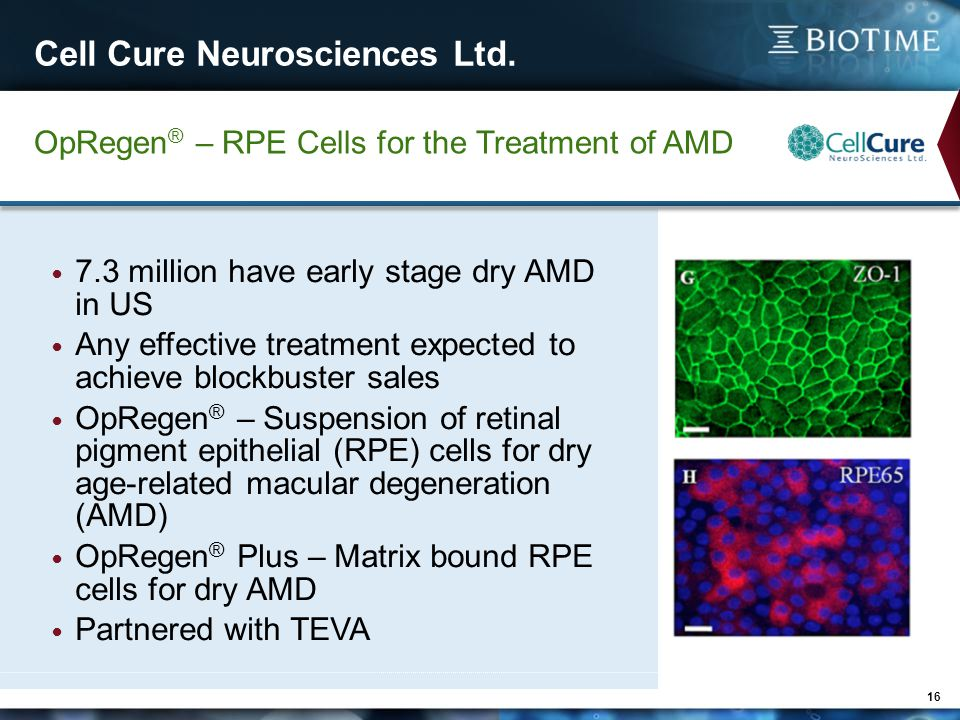 Cell Cure Neurosciences Ltd. 16 OpRegen ® – RPE Cells for the Treatment of AMD 7.3 million have early stage dry AMD in US Any effective treatment expe
