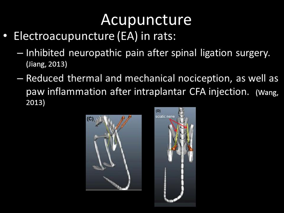 Acupuncture Electroacupuncture (EA) in rats: – Inhibited neuropathic pain after spinal ligation surgery. (Jiang, 2013) – Reduced thermal and mechanica