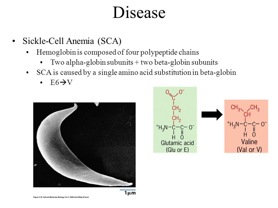 Disease Sickle-Cell Anemia (SCA) Hemoglobin is composed of four polypeptide chains Two alpha-globin subunits + two beta-globin subunits SCA is caused