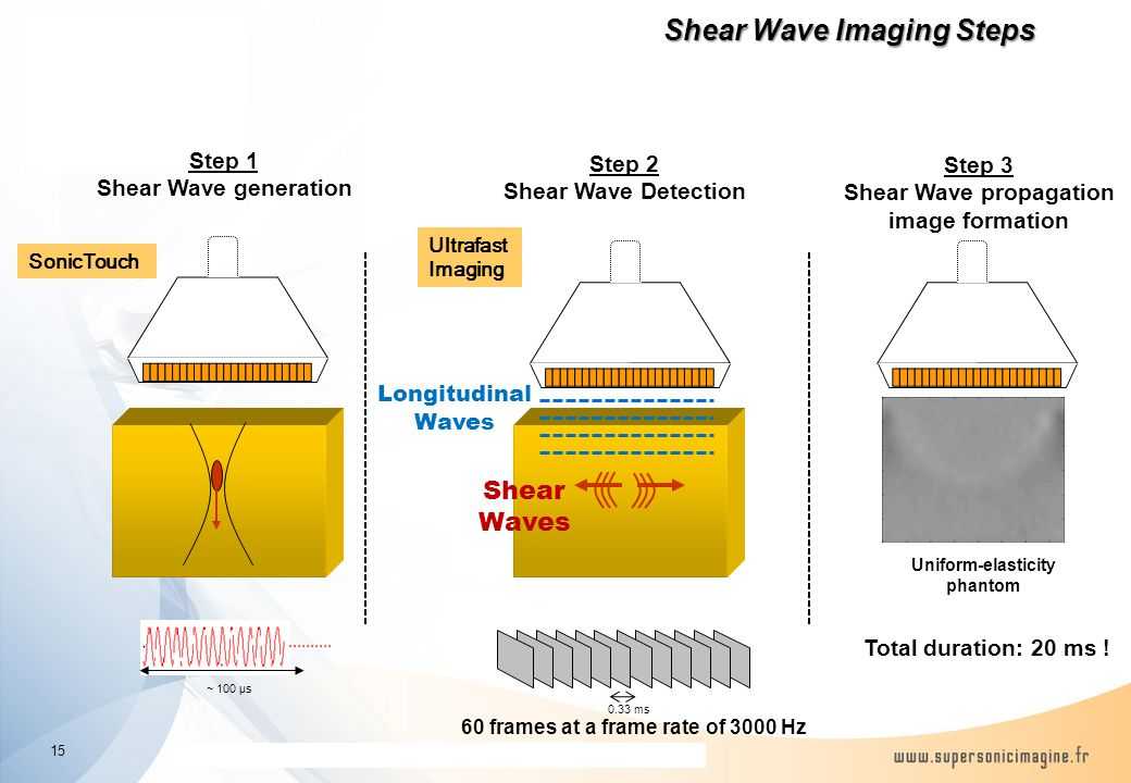 The information contained in this presentation is proprietary and confidential Shear Wave Imaging Steps Uniform-elasticity phantom ~ 100 µs Step 1 Shear Wave generation 60 frames at a frame rate of 3000 Hz 0.33 ms Total duration: 20 ms .
