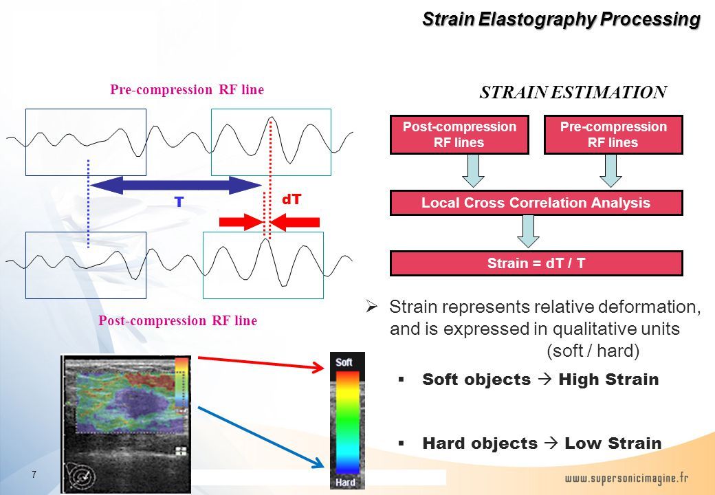 The information contained in this presentation is proprietary and confidential Pre-compression RF line Post-compression RF line dT T Pre-compression RF lines Post-compression RF lines Local Cross Correlation Analysis STRAIN ESTIMATION  Strain represents relative deformation, and is expressed in qualitative units (soft / hard)  Soft objects  High Strain  Hard objects  Low Strain Strain = dT / T Strain Elastography Processing Strain Elastography Processing 7