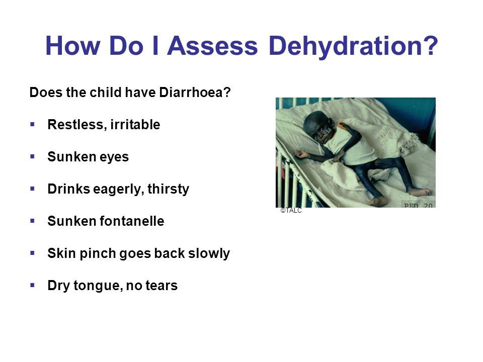 How Do I Assess Dehydration. Does the child have Diarrhoea.