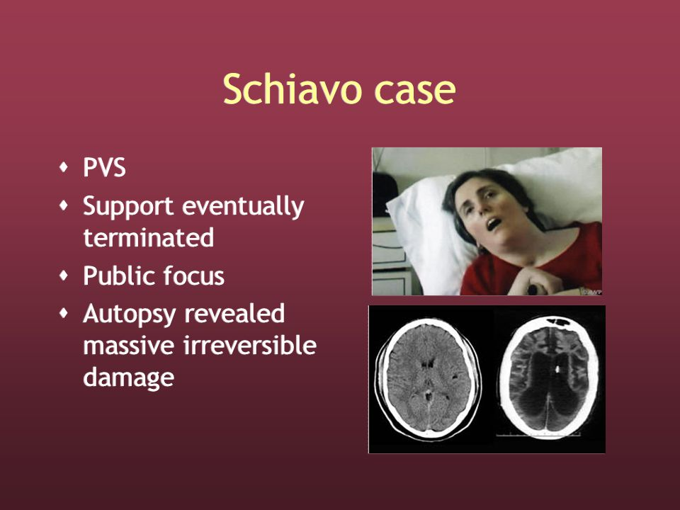 Schiavo case  PVS  Support eventually terminated  Public focus  Autopsy revealed massive irreversible damage  PVS  Support eventually terminated  Public focus  Autopsy revealed massive irreversible damage