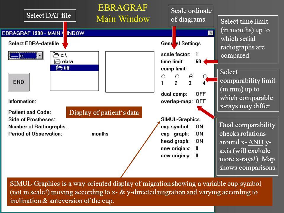 Interpretation of diagrams Reliable EBRA-results depend mainly on precise landmark setting with the EBRA-CUP measurement program.