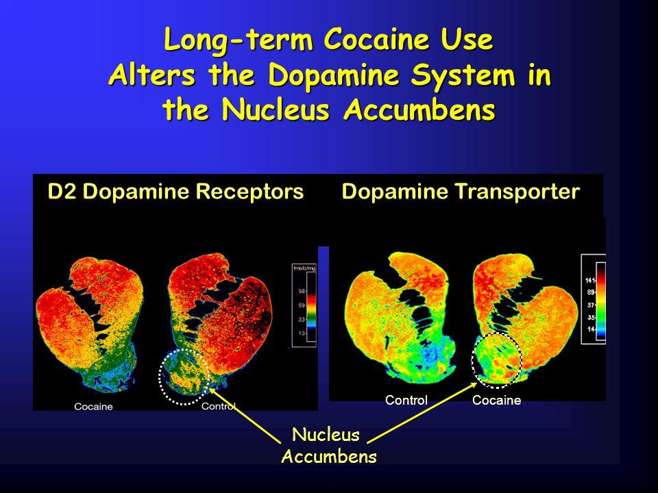 Long-term Cocaine Use Alters the Dopamine System in the Nucleus Accumbens Nucleus Accumbens D2 Dopamine ReceptorsDopamine Transporter Control Cocaine