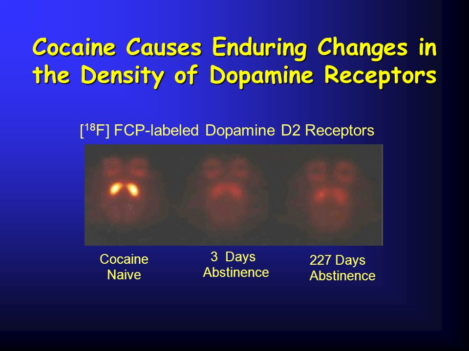 Cocaine Causes Enduring Changes in the Density of Dopamine Receptors [ 18 F] FCP-labeled Dopamine D2 Receptors Cocaine Naive 227 Days Abstinence 3 Day