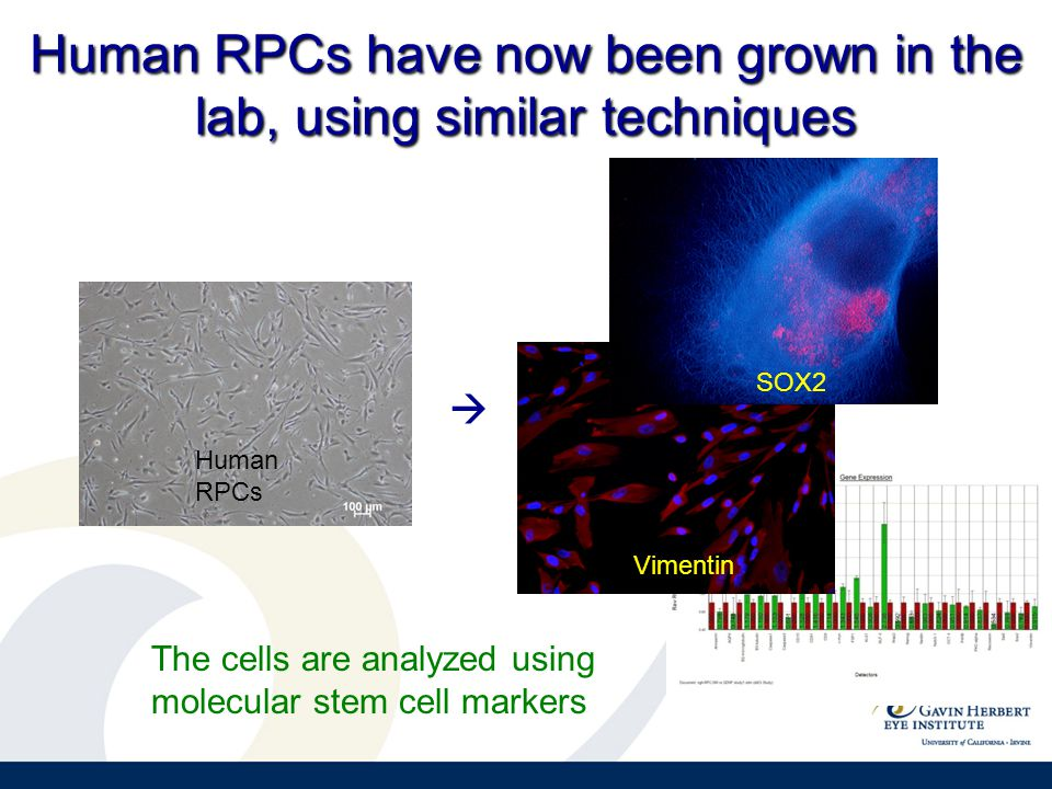 Human RPCs have now been grown in the lab, using similar techniques Vimentin SOX2  Human RPCs The cells are analyzed using molecular stem cell markers