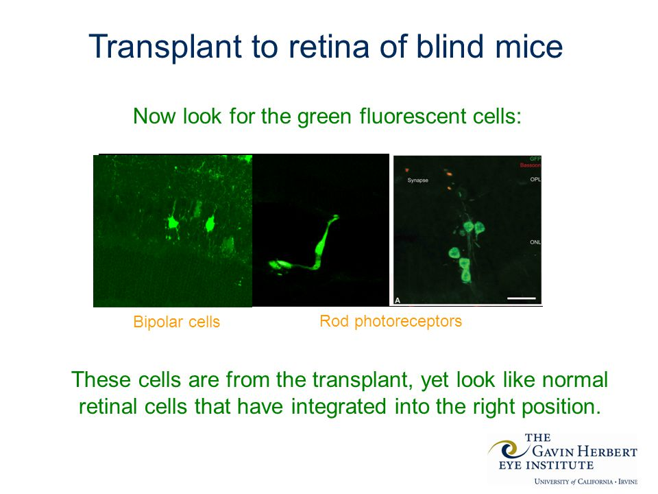 Transplant to retina of blind mice Now look for the green fluorescent cells: These cells are from the transplant, yet look like normal retinal cells that have integrated into the right position.