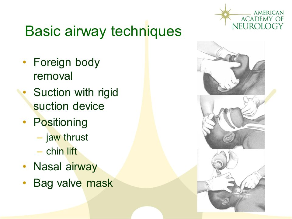 Basic airway techniques Foreign body removal Suction with rigid suction device Positioning –jaw thrust –chin lift Nasal airway Bag valve mask
