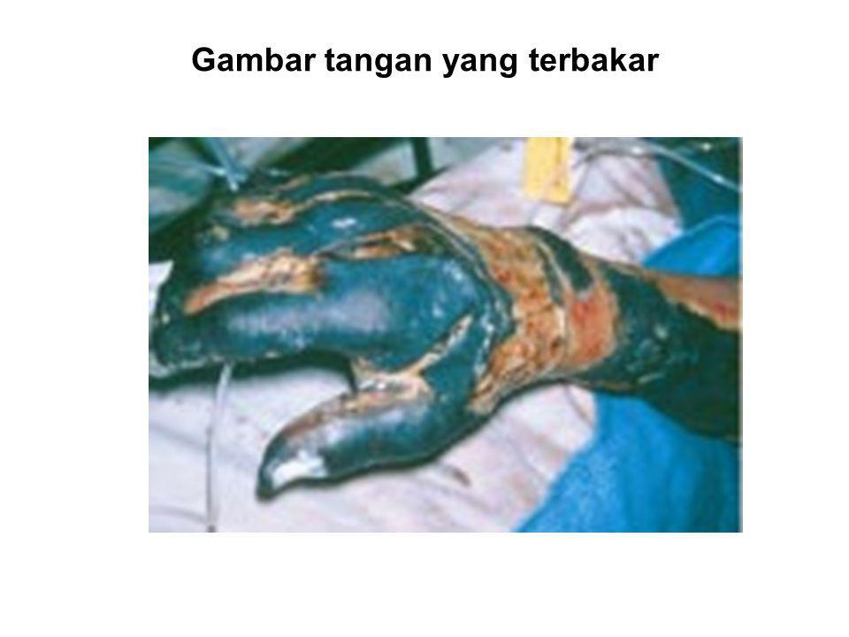 Gambar tangan yang terbakar