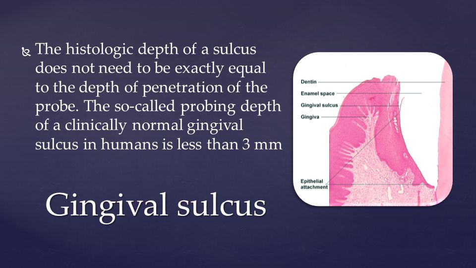Gingival sulcus   The histologic depth of a sulcus does not need to be exactly equal to the depth of penetration of the probe.