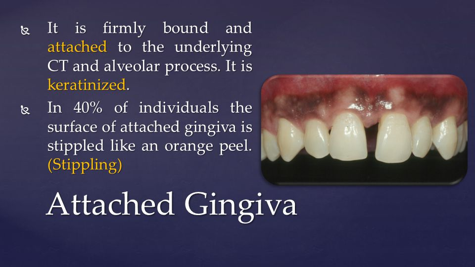 Attached Gingiva  It is firmly bound and attached to the underlying CT and alveolar process.