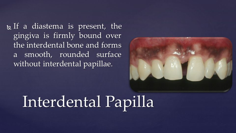 If a diastema is present, the gingiva is firmly bound over the interdental bone and forms a smooth, rounded surface without interdental papillae.