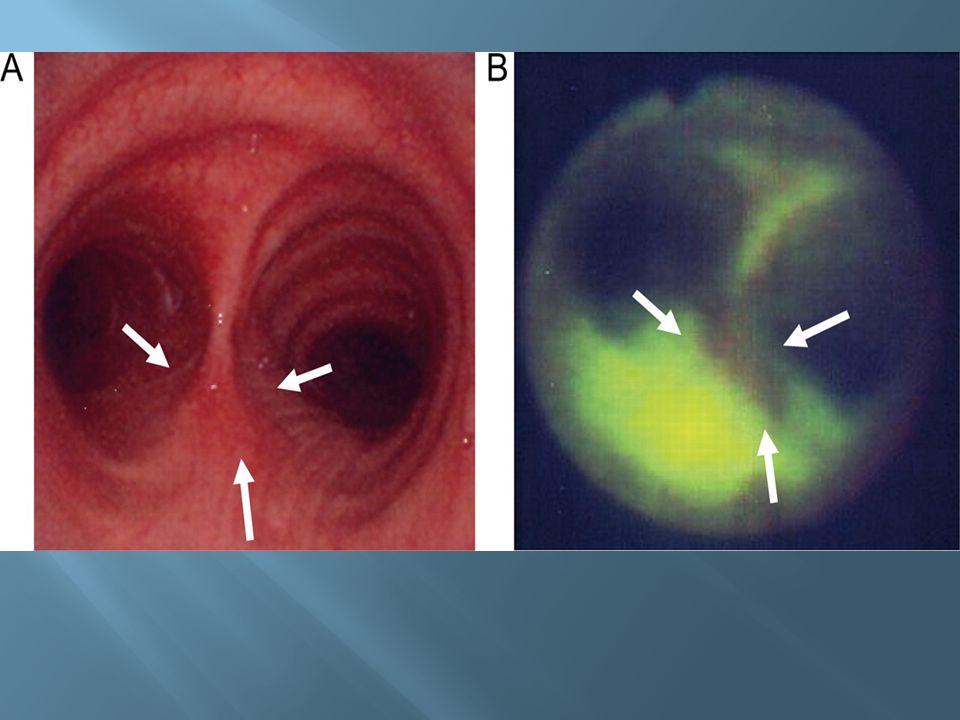 Right main bronchus carcinoma in situ under a) white light imaging b) autofluorescence imaging