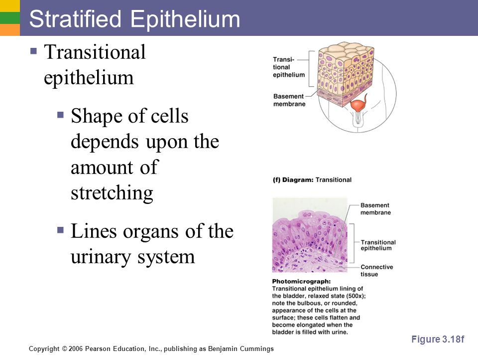Copyright © 2006 Pearson Education, Inc., publishing as Benjamin Cummings Stratified Epithelium  Transitional epithelium  Shape of cells depends upon the amount of stretching  Lines organs of the urinary system Figure 3.18f