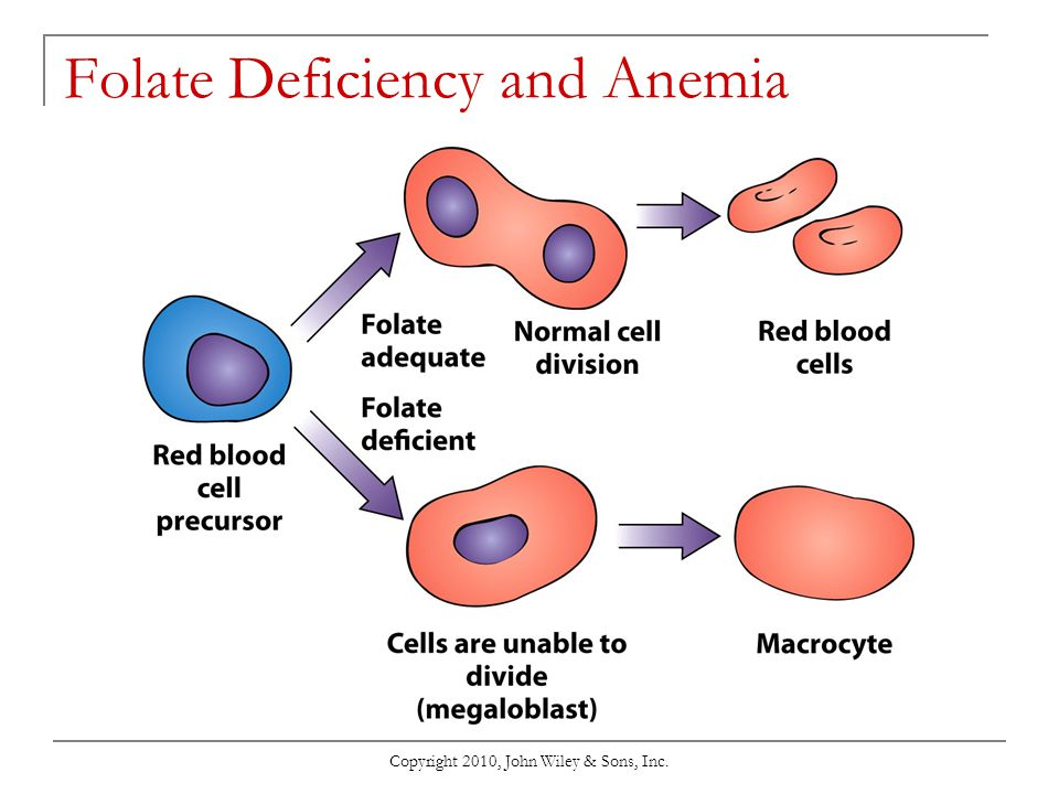 Copyright 2010, John Wiley & Sons, Inc. Folate Deficiency and Anemia