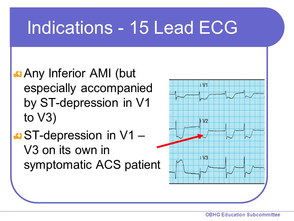 OBHG Education Subcommittee Indications - 15 Lead ECG  Any Inferior AMI (but especially accompanied by ST-depression in V1 to V3)  ST-depression in V1 – V3 on its own in symptomatic ACS patient