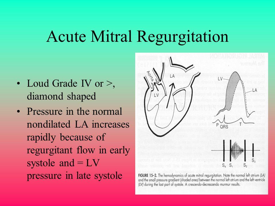 Acute Mitral Regurgitation Loud Grade IV or >, diamond shaped Pressure in the normal nondilated LA increases rapidly because of regurgitant flow in ea