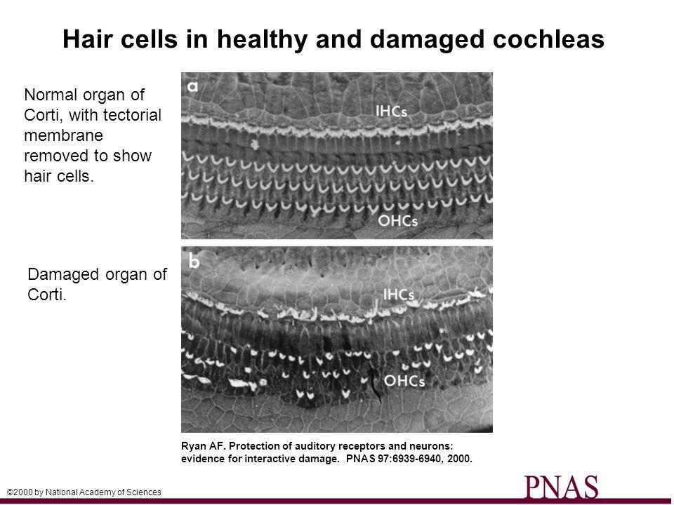 © 2011 Pearson Education, Inc. Normal organ of Corti, with tectorial membrane removed to show hair cells. Ryan AF. Protection of auditory receptors an