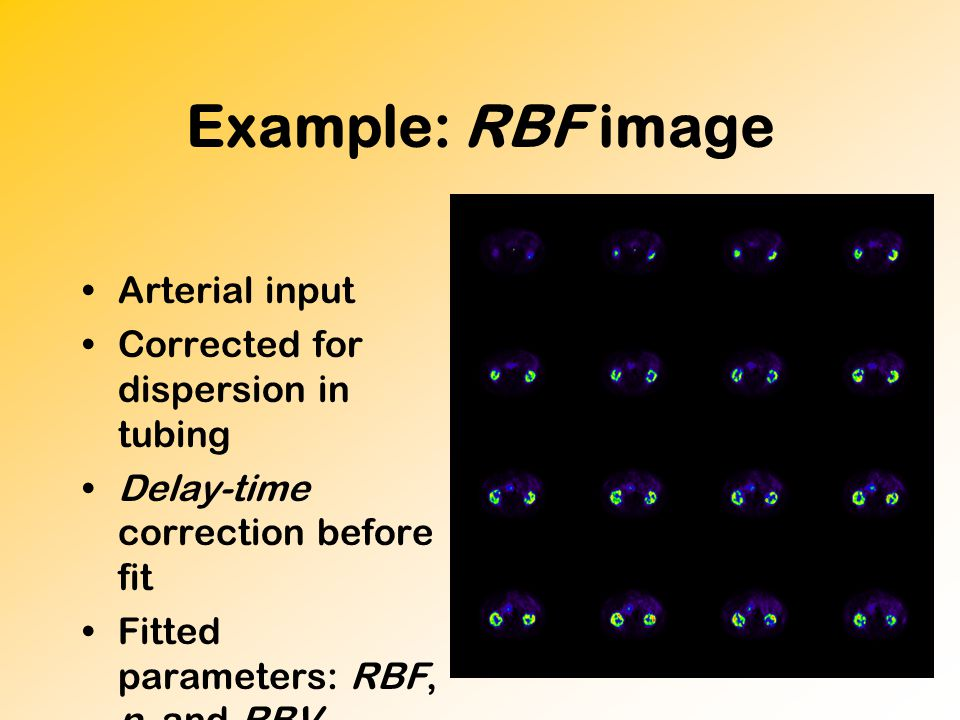 Example: RBF image Arterial input Corrected for dispersion in tubing Delay-time correction before fit Fitted parameters: RBF, p, and RBV