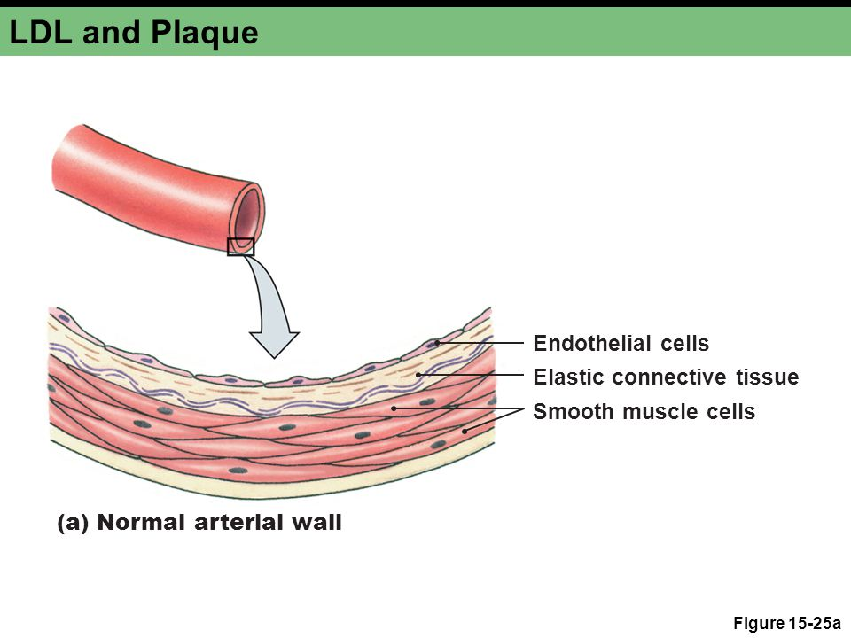 LDL and Plaque Figure 15-25a (a) Normal arterial wall Endothelial cells Elastic connective tissue Smooth muscle cells