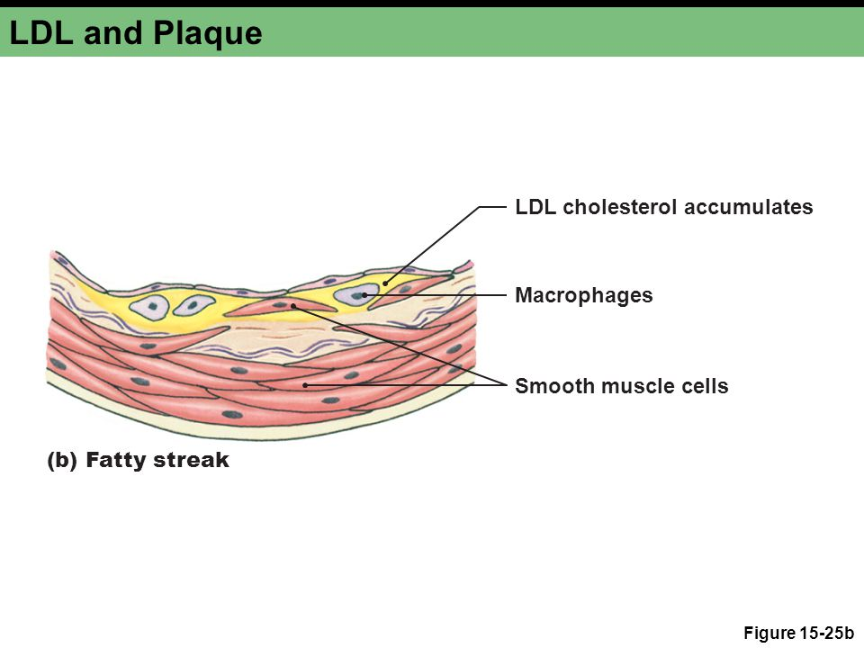 LDL and Plaque Figure 15-25b (b) Fatty streak Macrophages Smooth muscle cells LDL cholesterol accumulates