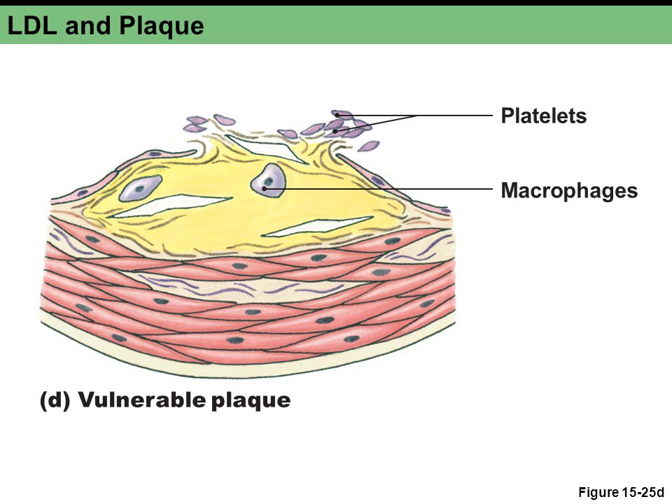 LDL and Plaque Figure 15-25d (d) Vulnerable plaque Platelets Macrophages
