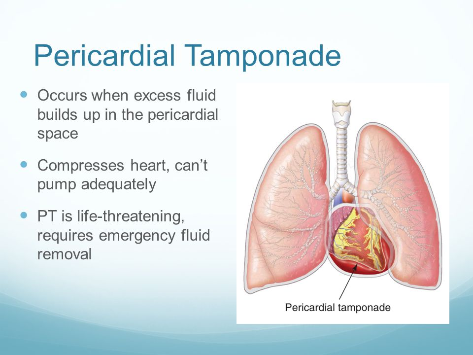 Pericardial Tamponade Occurs when excess fluid builds up in the pericardial space Compresses heart, can't pump adequately PT is life-threatening, requ
