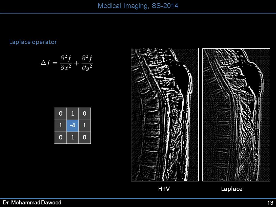 13 Medical Imaging, SS-2014 Dr. Mohammad Dawood 010 1-41 010 Laplace operator H+V Laplace