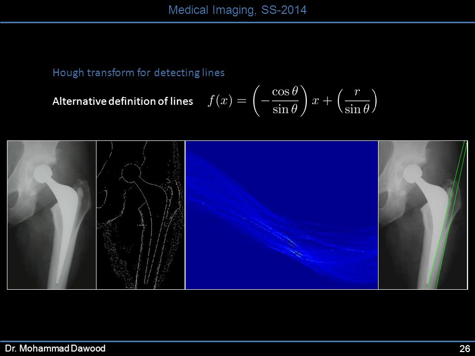 26 Medical Imaging, SS-2014 Dr.