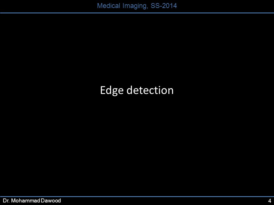 4 Medical Imaging, SS-2014 Dr. Mohammad Dawood Edge detection